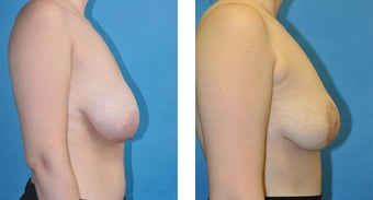 23 Year Old Woman, Breast Asymmetry and Tuberous Breast Correction with Fat Transfer 1039948