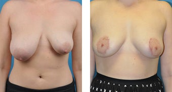23 Year Old Woman, Breast Asymmetry and Tuberous Breast Correction with Fat Transfer before 1039948