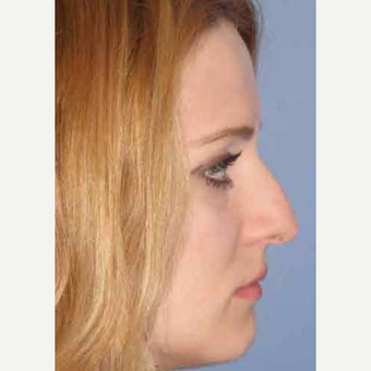 25-34 year old woman treated with Rhinoplasty before 3499716