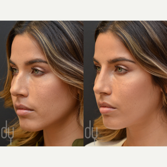 25-34 year old woman treated with Non Surgical Nose Job before 2990864