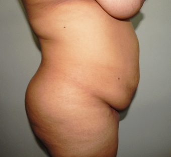 25-34 year old woman treated with Tummy Tuck before 3445974