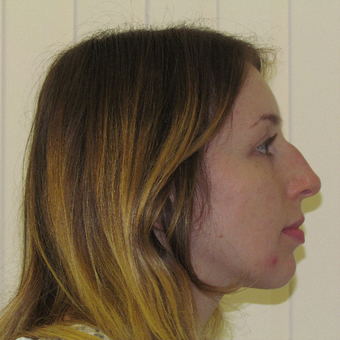 18-24 year old woman treated with Rhinoplasty before 3337764