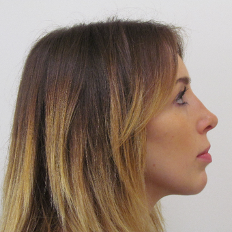 18-24 year old woman treated with Rhinoplasty after 3337764