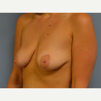 25-34 year old woman treated with Breast Lift with Implants before 3367883