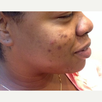 25-34 year old woman treated with Chemical Peel before 3443908