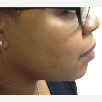 25-34 year old woman treated with Chemical Peel after 3443908