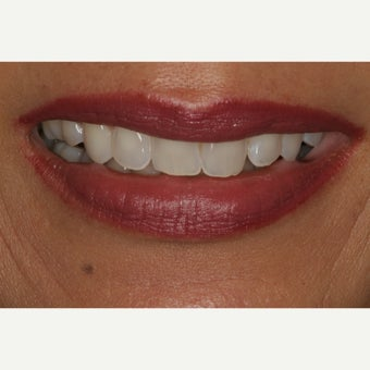 55-64 year old woman treated with Porcelain Veneers