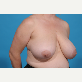 35-44 year old woman treated with Breast Reduction before 3776971