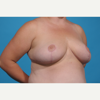 35-44 year old woman treated with Breast Reduction after 3776971