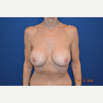 55-64 year old woman treated with Breast Implant Revision after 3663561