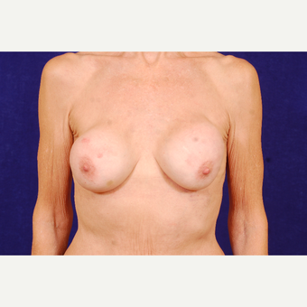 55-64 year old woman treated with Breast Implant Revision before 3663561