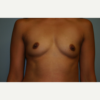 Breast Augmentation Before and After Pictures 450CC High Profile Silicone Implants before 3032708