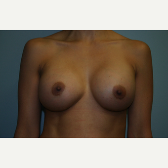 Breast Augmentation Before and After Pictures 450CC High Profile Silicone Implants after 3032708