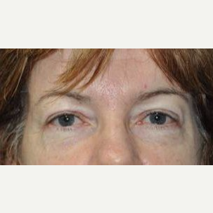 Eyelid Surgery after 3148563