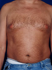Male Tummy Tuck before 1458701
