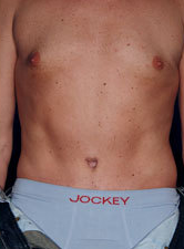 Male Tummy Tuck after 1458701