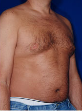 Male Tummy Tuck 1458701