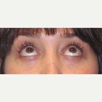 35-44 year old woman treated with Eyelid Surgery after 3590135