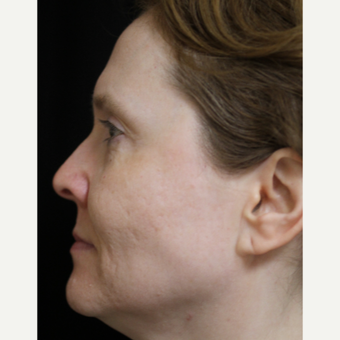45-54 year old woman treated with Acne Scars Treatment