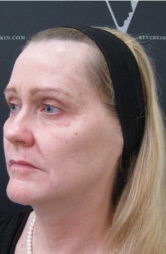 Juvederm fillers to soften fine lines and redefine facial contours after 3298325