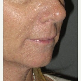 45-54 year old woman treated with PermaLip Lip Implants