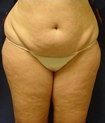 45-54 year old woman treated with Mini Tummy Tuck before 2058490