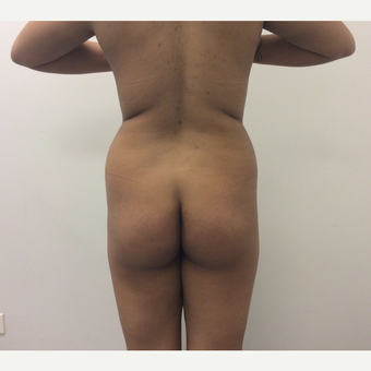 25-34 year old woman treated with Fat Transfer before 3590453