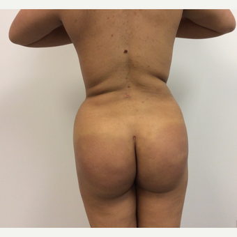 25-34 year old woman treated with Fat Transfer after 3590453