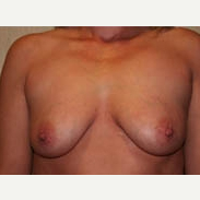 35-44 year old woman treated with Breast Lift before 3339023