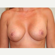 35-44 year old woman treated with Breast Lift after 3339023