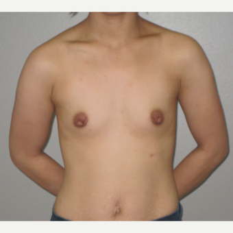 25-34 year old woman treated with Breast Augmentation before 3666717