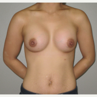 25-34 year old woman treated with Breast Augmentation after 3666717