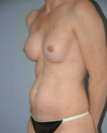 48 year old female Breast surgery 1356949