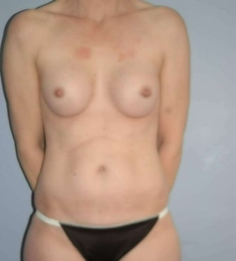 48 year old female Breast surgery before 1356949