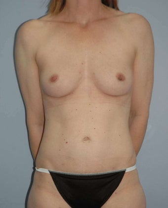 48 year old female Breast surgery after 1356949