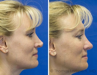 Revision rhinoplasty after 233188