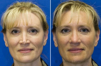 Revision rhinoplasty before 233188
