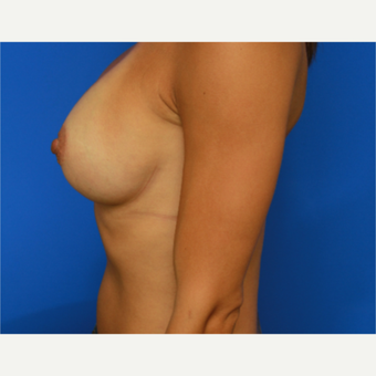 31- year old woman treated with Breast Implants after 3398665