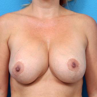 35-44 year old woman treated with Breast Implant Revision before 3550950