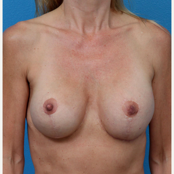 35-44 year old woman treated with Breast Implant Revision after 3550950