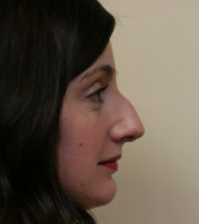 Rhinoplasty before 275734