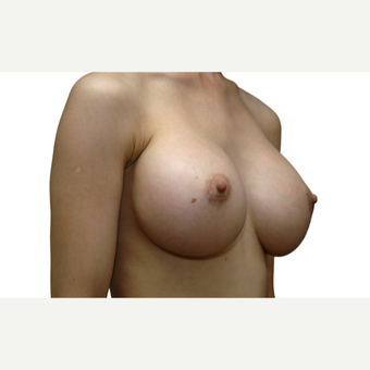 25-34 year old woman treated with Breast Augmentation after 3577218