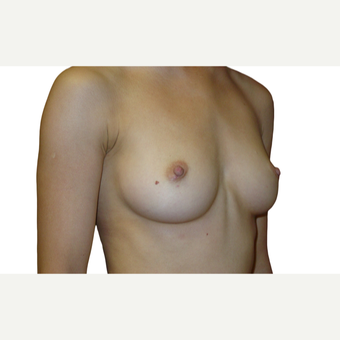 25-34 year old woman treated with Breast Augmentation before 3577218