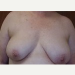 45-54 year old woman treated with Breast Lift before 3088422