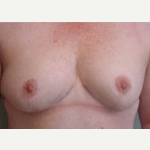 45-54 year old woman treated with Breast Lift after 3088422