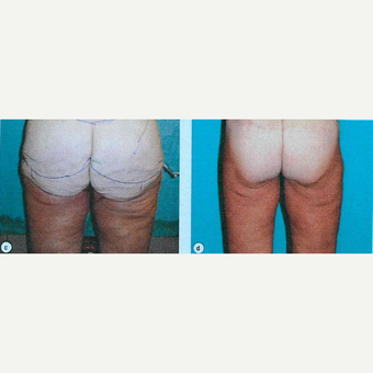 45-54 year old woman treated with Butt Lift before 3663690