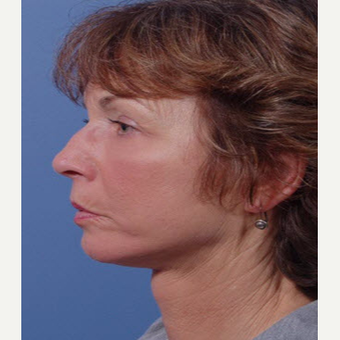 55-64 year old woman treated with Facelift after 3711363