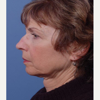 55-64 year old woman treated with Facelift before 3711363