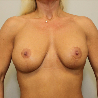 25-34 year old woman treated with Breast Lift with Implants after 3069781
