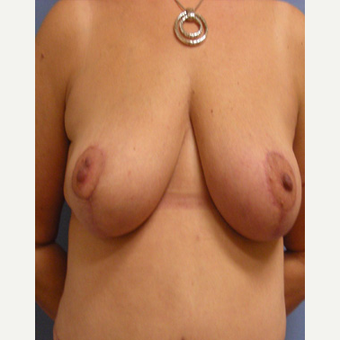 45-54 year old woman treated with Breast Lift after 3604921